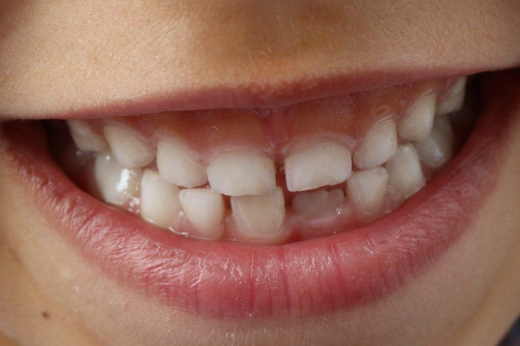 Het verhaal van de tandenfee